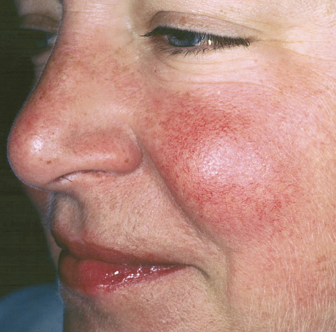 Rosacea Before. 2tif